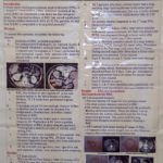 My poster at World congress of Endourology at Kyoto, 2010